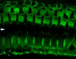 Gene discovery reveals a critical protein's function in hearing