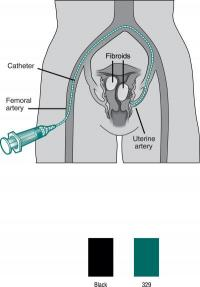 Interventional radiology treatment for uterine fibroids: Safe, nonsurgical option