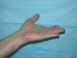Discovery of New Treatment for Hand Disorder Affecting Millions Shown Promising