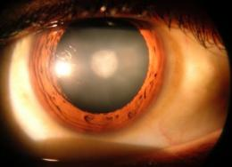 New evidence that popular dietary supplement may help prevent, treat cataracts