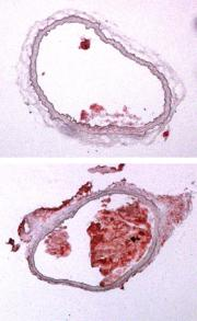 Scientists reveal a new mechanism that increases atherosclerosis in mice
