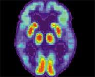 Blood flow in Alzheimer's disease