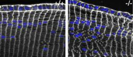 Study shows how disruption of spectrin-actin network causes lens cells in the eye to lose shape