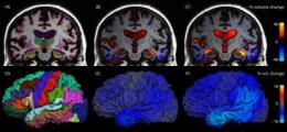 Analyzing structural brain changes in Alzheimer's disease