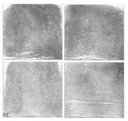 An inner 'fingerprint' for personalizing medical care