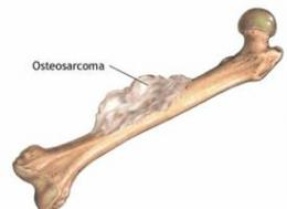 Approved Lymphoma Drug Shows Promise in Early Tests Against Bone Cancer