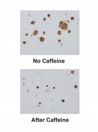 Caffeine reverses memory impairment in Alzheimer's mice