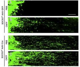 Coaxing injured nerve fibers to regenerate by disabling 'brakes' in the system