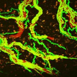 Crossing the line: how aggressive cells invade the brain