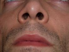 face, nose