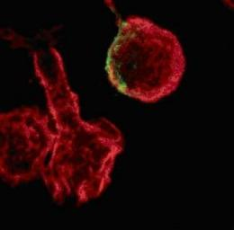 How HIV cripples immune cells