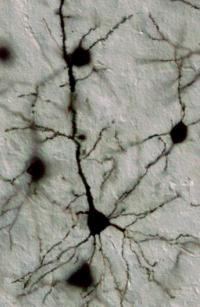 Johns Hopkins scientists discover a controller of brain circuitry