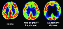 Memory test and PET scans detect early signs of Alzheimer's