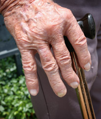 New trigger for chronic inflammation in rheumatoid arthritis discovered