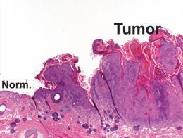 Penn Study Describes Novel Model of Skin Cancer