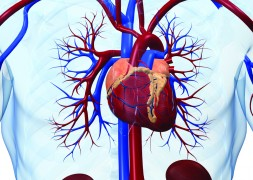 Stroke and heart disease trigger revealed in new research