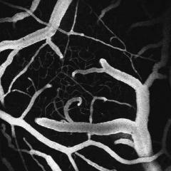 Surface Arteries Brain Dive into the Brain to Feed Capillaries
