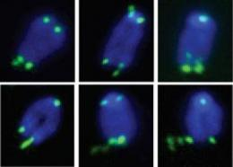 Telomeres resemble DNA fragile sites