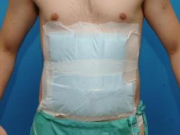 The decision about the incision: Is midline or transverse better for abdominal surgery?