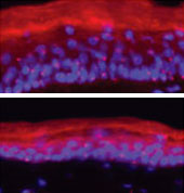 Two proteins enable skin cells to regenerate