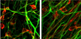 Virus-free embryonic-like stem cells made from skin of Parkinson's disease patients