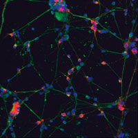 Initiative hopes to expedite cell-based treatments for Parkinson's