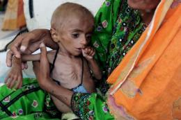 Almost a billion people suffer from hunger, according to the FAO