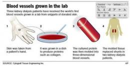 Diabetics receive blood vessels grown in lab (AP)