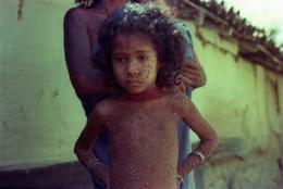 Experts debate destroying last smallpox viruses (AP)