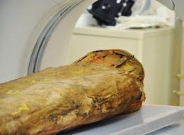 Hospital tests reveal the secrets of an Egyptian mummy