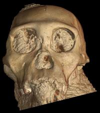 Human brain evolution, new insight through X-rays