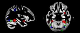 New research explains autistic's exceptional visual abilities