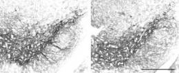 Parkinson's disease may be caused by microtubule, rather than mitochondrial complex I, dysfunction