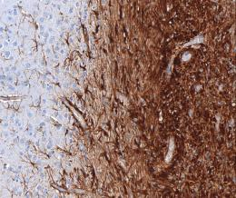 Single gene defect causes brain tumor