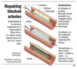 Studies question heart bypass, angioplasty method (AP)
