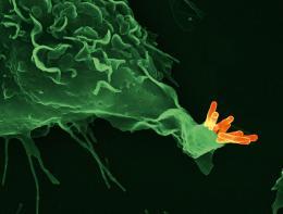 The biosignature of tuberculosis
