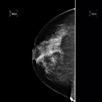 Scientists discover first breast cancer 'oncogene' in five years