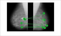 Visual nudge improves accuracy of mammogram readings