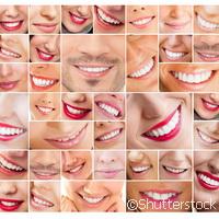 Nanotecnología: sonríe todo el