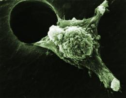 Researchers discover what cancer cells need to travel