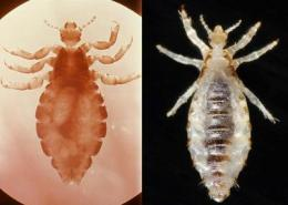 Head and body lice appear to be the same species, genetic study finds