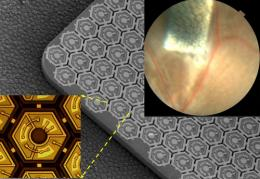 Solar-panel-like retinal prosthesis could better restore sight to blind