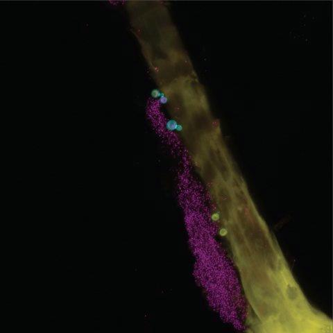 NIH researchers conduct first genomic survey of human skin fungal diversity