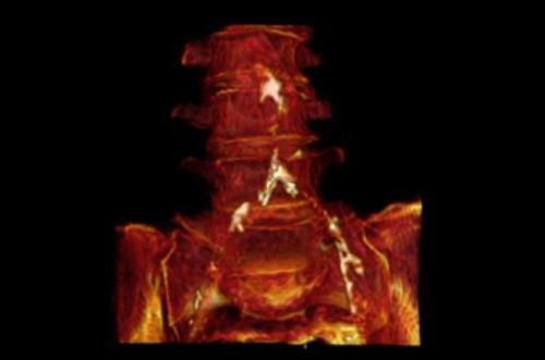 This CT with 3D volume rendering shows the aortic and iliac calcification in a mummified Egyptian woman aged 45-50