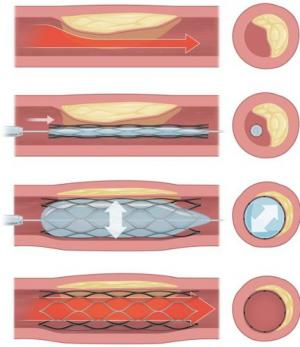 Zinc: The perfect material for bioabsorbable stents?