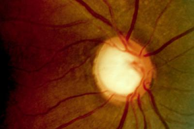 $6.4 million grant funds glaucoma study in African-Americans