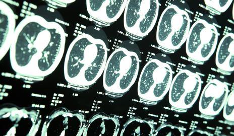 Наночастица для лечения смертельной опухоли мозга