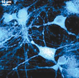 Визуализация синтеза новых белков в живых клетках