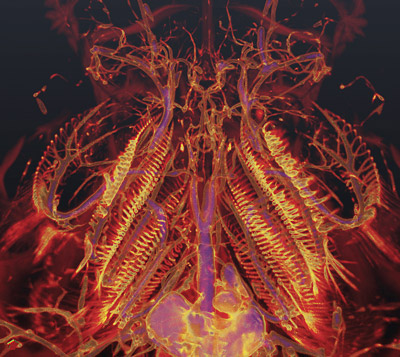 CT scans help answer question of how fish lungs evolved