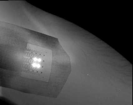 Research team develops tattoo-like skin thermometer patch